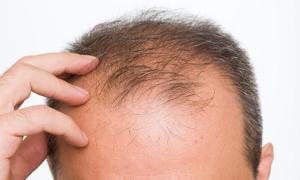 مطالعه فراتحلیلی ارزیابی بالینی اثرات عصارههای گیاهی بر روی اشکال رایج ریزش مو