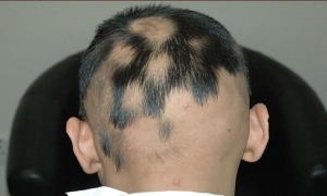 ریزش مو سکه ای یا آلوپسی آره آتا