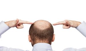 ریزش  مو ارثی-هورمونی یا آلوپسی آندروژنیک