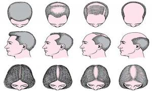 تفاوت الگوی ریزش مو در زنان و مردان
