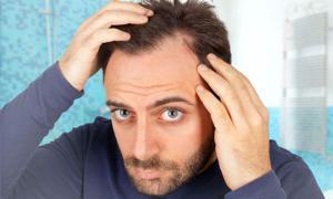برای مراقبت از مو و درمان ریزش موی آقایان چه نکاتی را باید رعایت کنیم؟