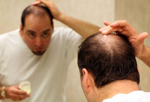 دلایل ریزش موی سر چیست؟