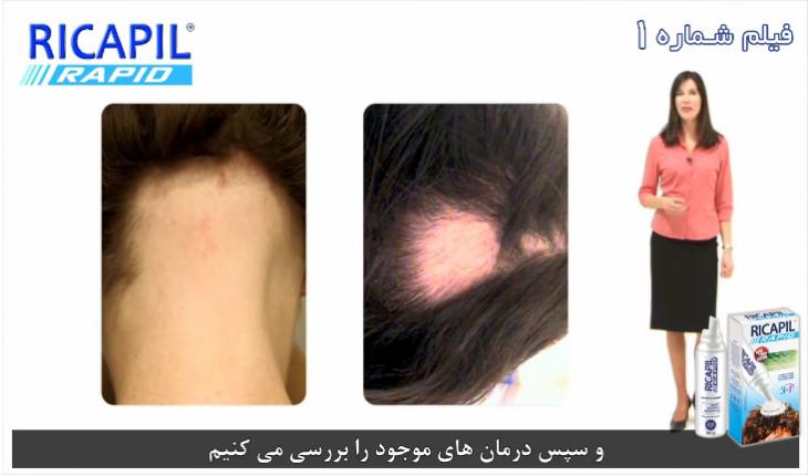ریزش موی سکه ای (فیلم شماره 1)